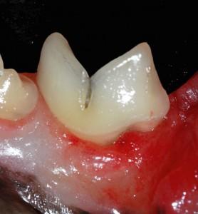 Problèmes dentaires du chat : tartre et maladie parodontale (prévention, symptômes, traitement)